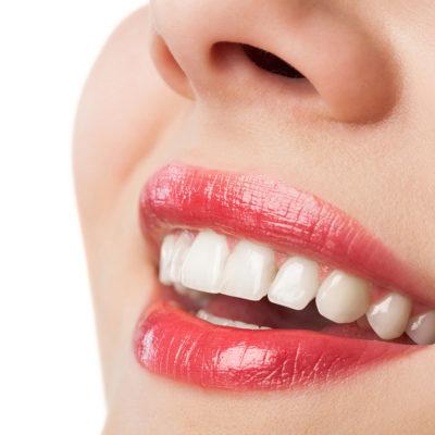 Bocca e denti